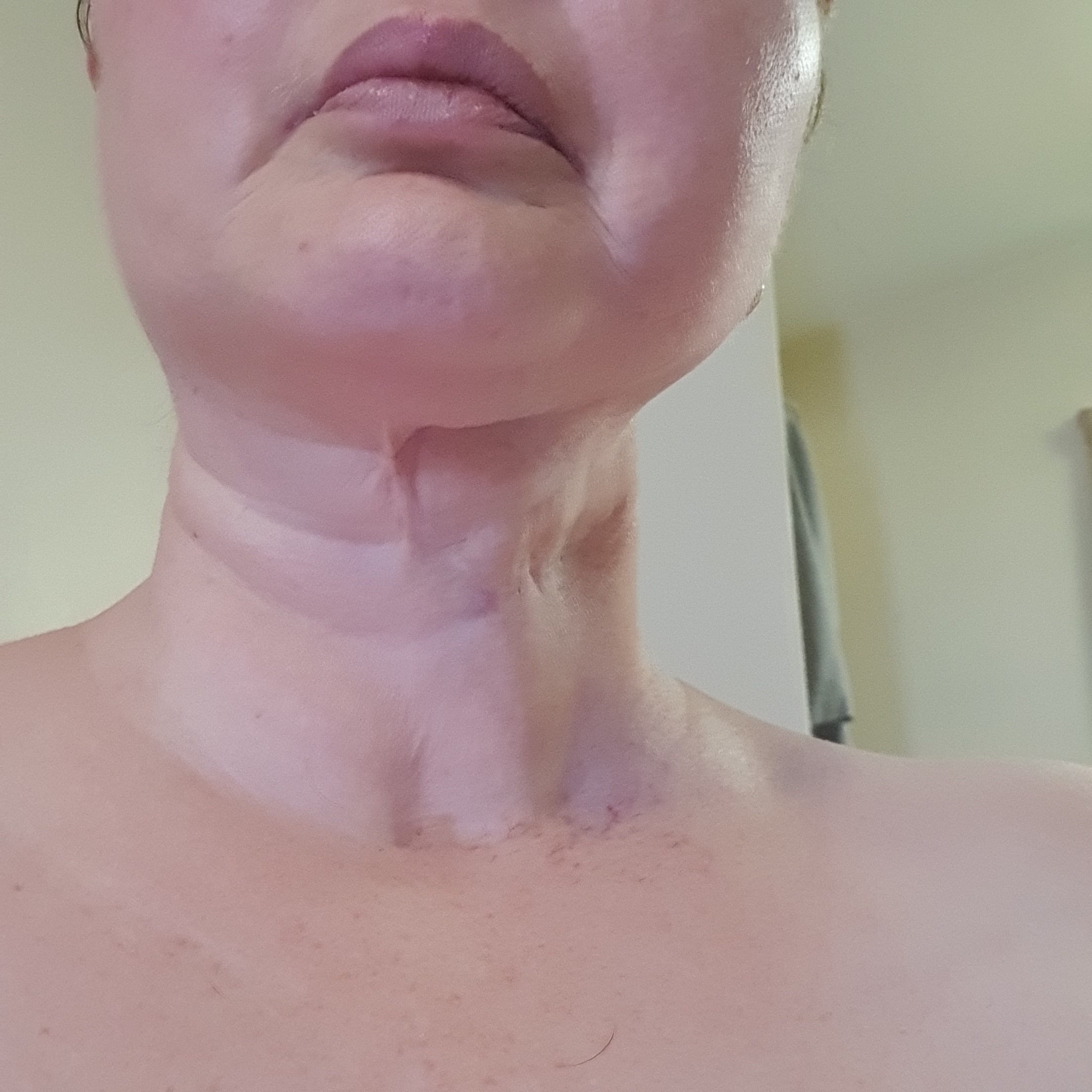 My neck: Radiation fibrosis syndrome