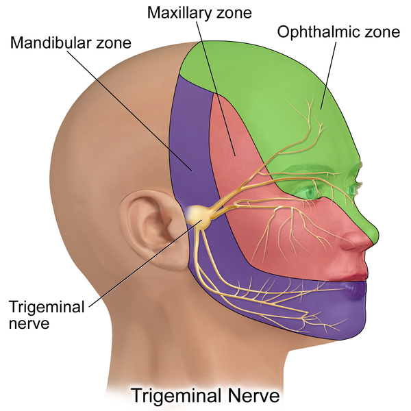 Graphic of head showing different pain areas including my cancer pain area in purple.